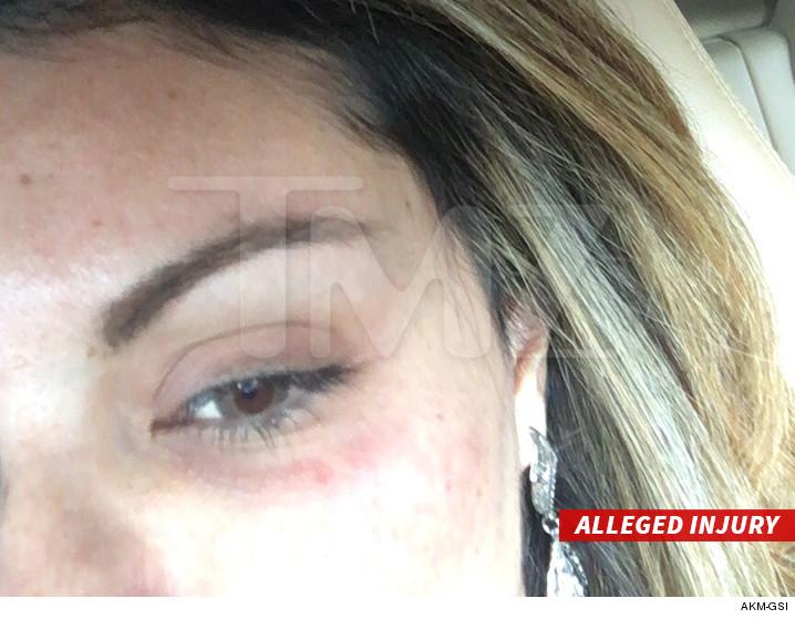 chris brown hit woman