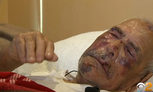 92-year-old-man-beaten